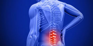 Bulging/Herniated Discs and What Do They Mean